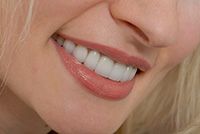 Tooth Restoration Services